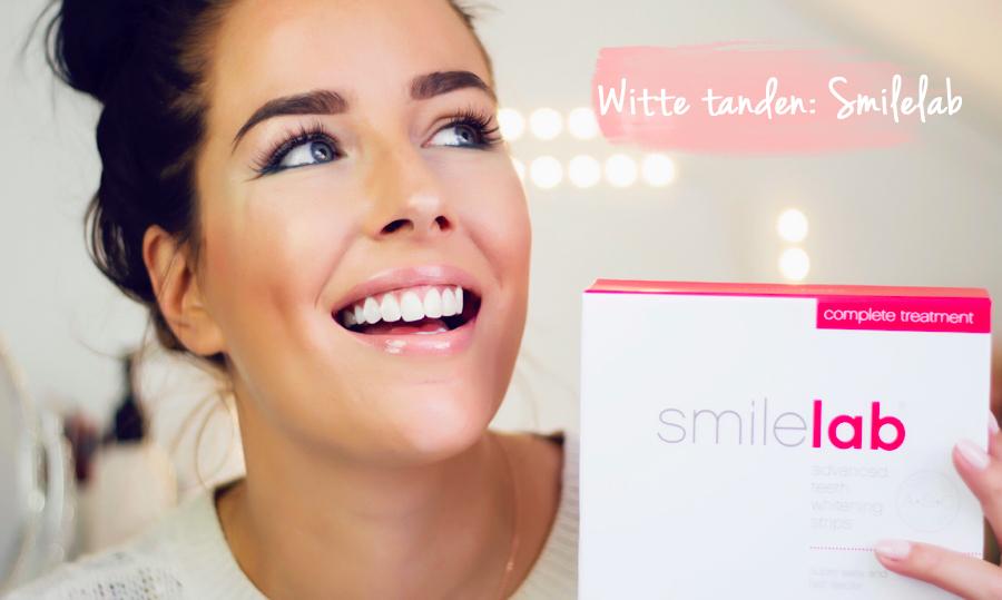 REVIEW: WHITENING STRIPS VAN SMILELAB