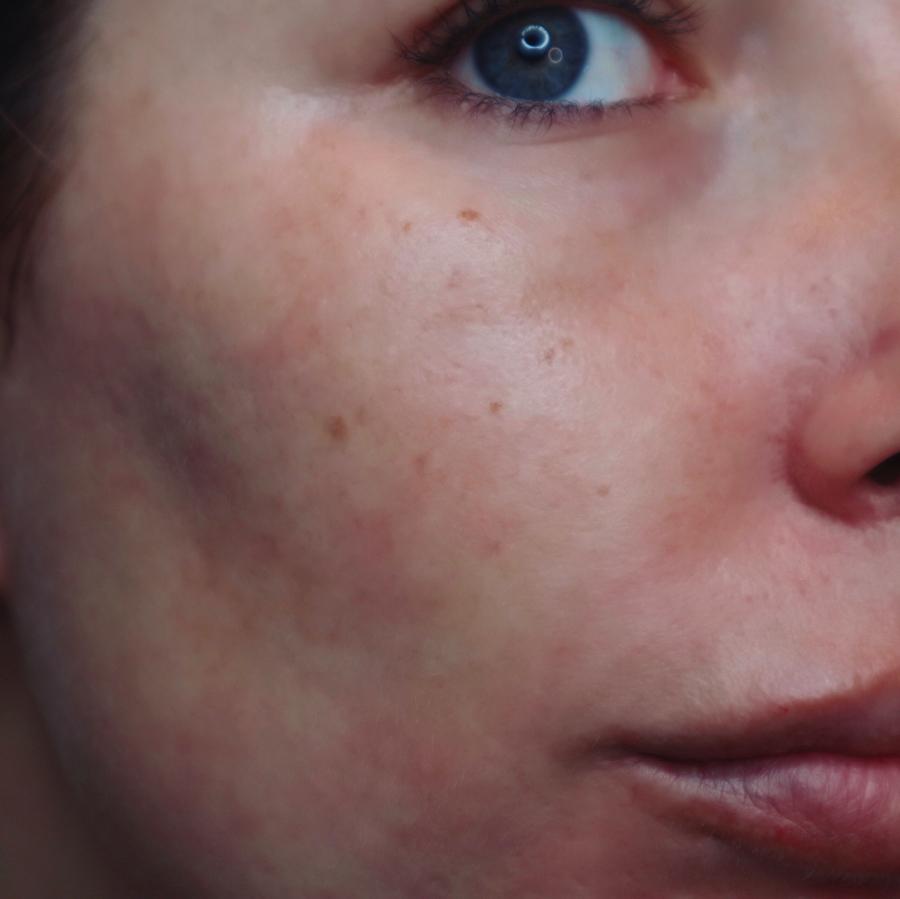 Clarins SOS primer voor de rode huid